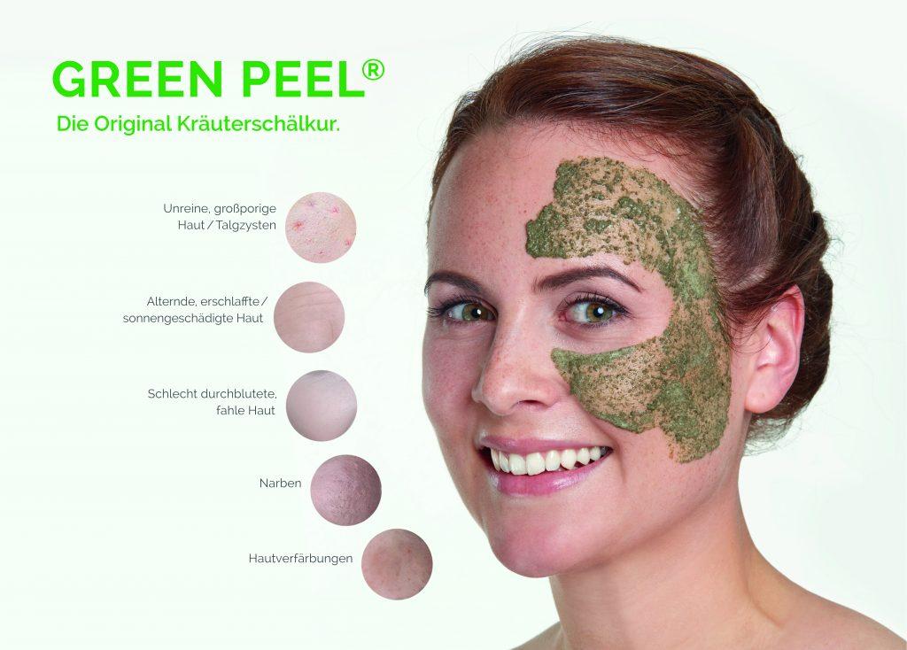 Green-Peel-Classic-Bruchsal-Karlsruhe-Heidelberg