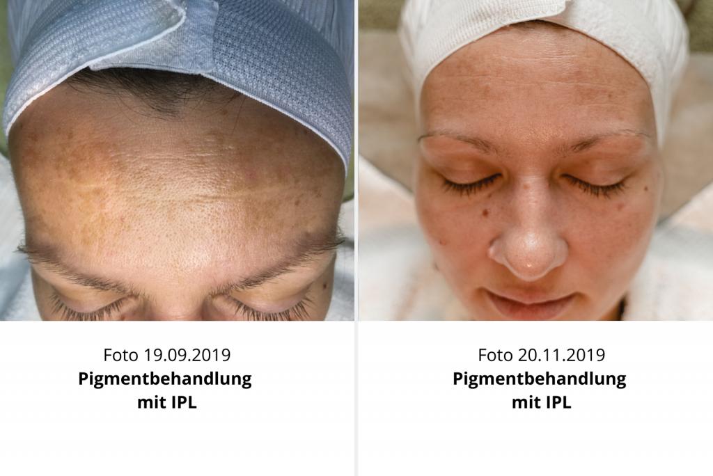 Kosmetikstudio_Driller_IPL_Pigmentbehandlung_Behandlungserfolge.png
