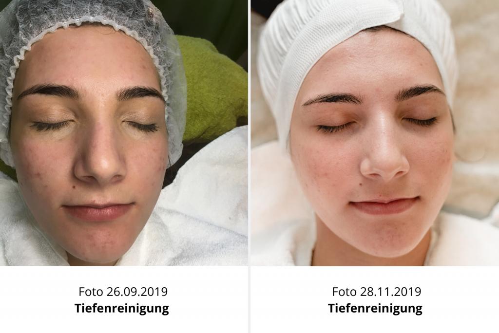 Kosmetikstudio_Driller_Tiefenreinigung_Behandlungserfolge_2
