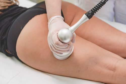 Kosmetikstudio-Driller-Bruchsal-Kavitation